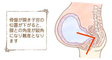 骨盤が開き子宮の位置が下がると、膣との角度が鋭角になり難産となります